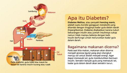 Apa itu Diabetes Tipe 2? ini, maka Anda mungkin ingin