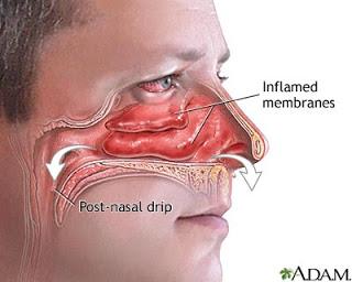 Bedah Sinus dan Semprotan Hidung hidung dan
