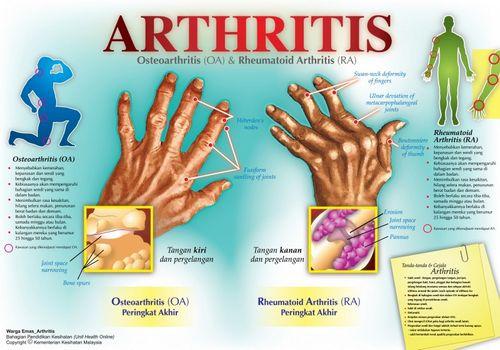 Gejala Arthritis sistem kekebalan tubuh Anda sendiri