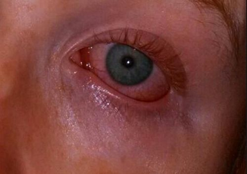 Gejala Mata Merah Muda Kotoran yang teksturnya seperti susu