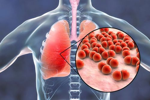 Gejala Sindrom Gangguan Pernafasan Akut Jika penderita asma terpapar hal